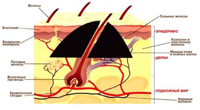 Кожа в разрезе для наглядного примера строения волос и родинки.