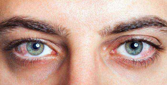 красные капилляры на глазах причины