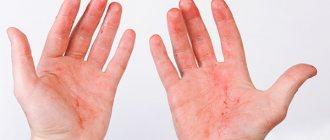 Красные ладони рук. Причины у взрослого, ребенка. Болезни и лечение