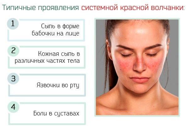 Красные щеки у взрослого. Причины, почему горят, лечение, признаки болезни