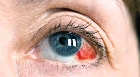 Красные сосуды глазах