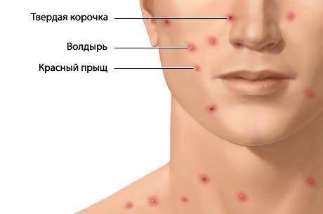 Красные точки на теле - что это, причины, как лечить у взрослых, беременных и детей
