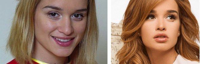 Ксения Бородина до и после предполагаемой ринопластики
