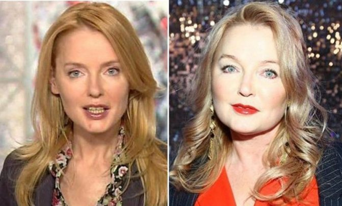 Лариса Вербицкая фото до и после пластики