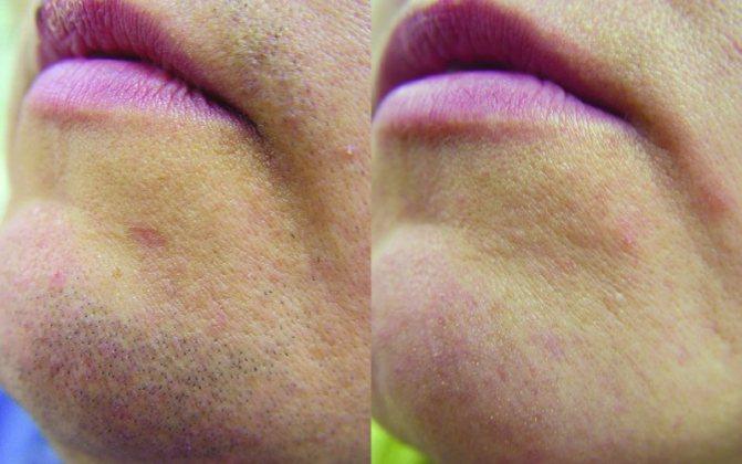 лазерная эпиляция над губой