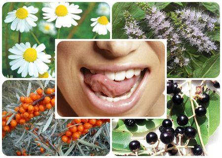 Лекарственные растения от прыщей на языке