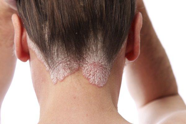 Ленточное наращивание волос: плюсы и минусы, отзывы, последствия, цена. Коррекция и уход
