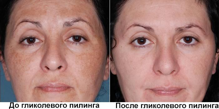 Лицо до и после гликолевого пилинга