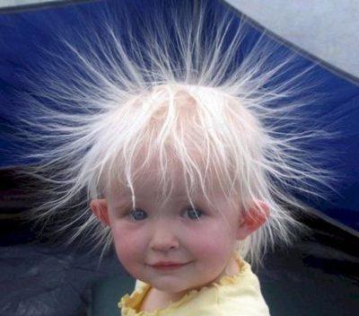 У ребенка плохо растут волосы в 1-2 года: причины, способы стимуляции роста, мнения врачей