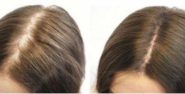 Масло усьмы. Что это такое, инструкция по применению для роста бровей, ресниц, волос. Отзывы и где купить