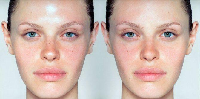 Матирующий крем для лица – что это такое? 4