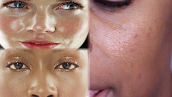 Матирующий крем для лица – что это такое?