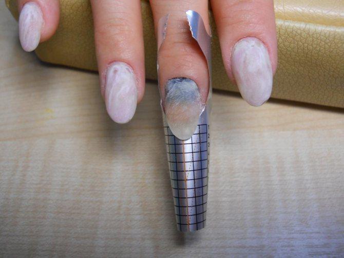 Моделирование поврежденного ногтя