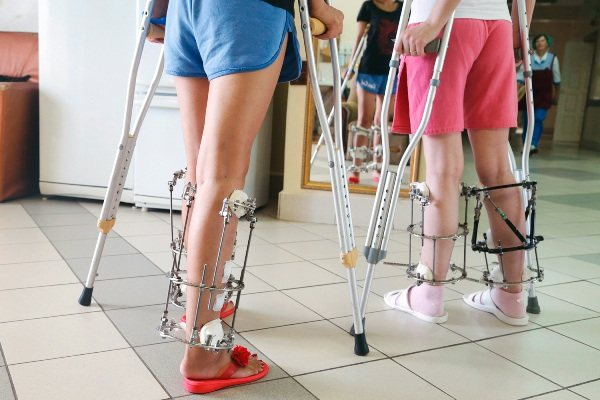 Можно ли исправить кривые ноги
