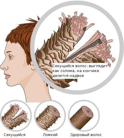 Мумие для волос. Свойства и применение в косметологии, как добавлять в шампунь. Отзывы трихологов и дерматологов