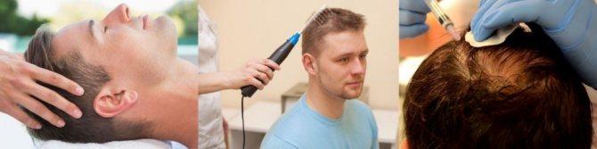 на голове появилось лысое пятно у мужчин процедуры