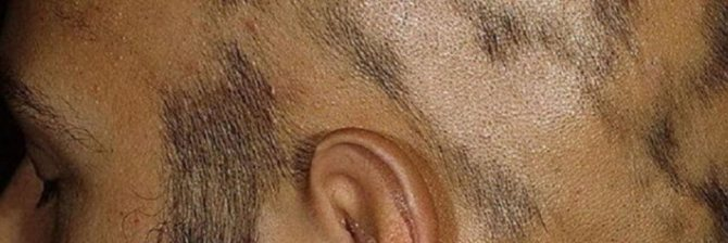 на голове появилось лысое пятно у мужчин