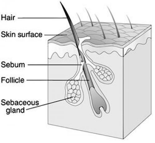 На лице кожное сало. Жирная кожа лица – причины
