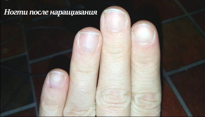 Наращивание или накладные ногти? Достоинства и недостатки, фото № 2