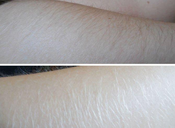 Обесцвечиваем волосы на теле