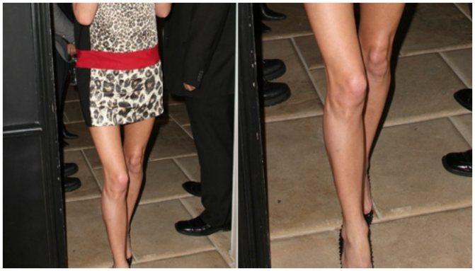 Обладательница кривых ног