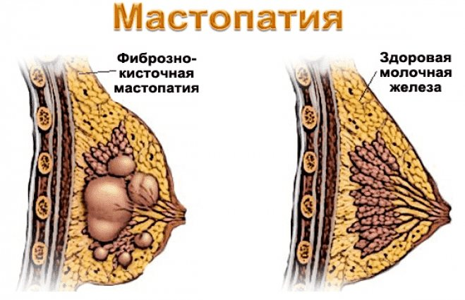 Одна из причин боли в груди после секса —мастопатия