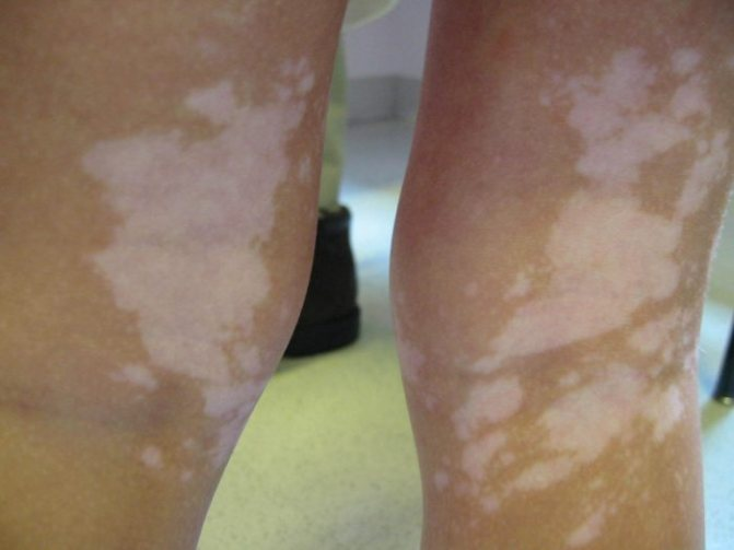 особенности пигментации кожи