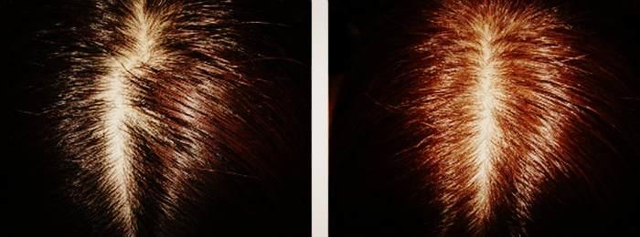 осветление волос корицей лимоном и медом фото может