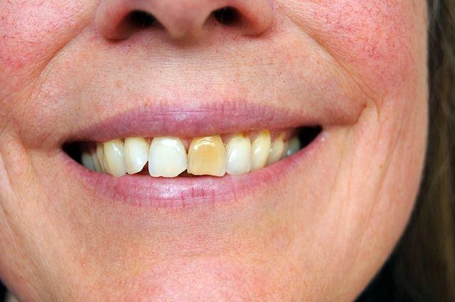 Отбеливание зубов народными средствами: сода, перекись водорода, лимон и другие способы отбеливания зубов народными средствами