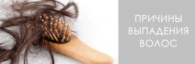 перхоть и выпадение волос причины