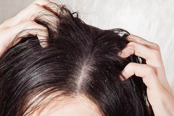 Перхоть и жирная кожа головы