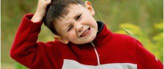 Перхоть у ребенка: нужно ли обращаться к врачу?