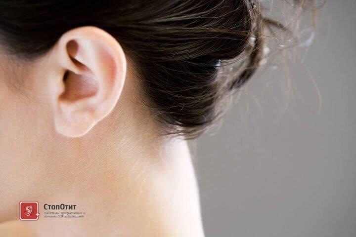 перхоть в ушах