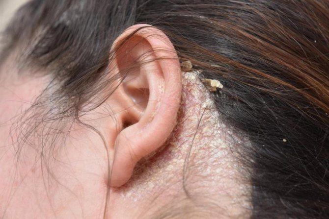 Белые корки в ушах