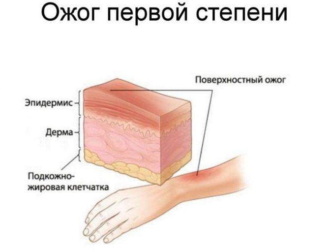 pervaja stepen - Розовая кожа после ожога