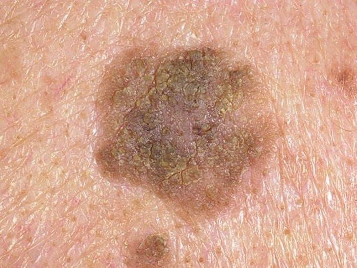 Пигментное пятно на груди у девушки с признаками перерождения