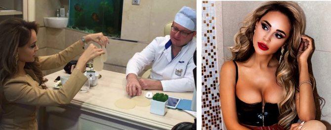 Пластика груди Анны Калашниковой: слева – певица выбирает размер имплантатов, справа – возможно, результат маммопластики