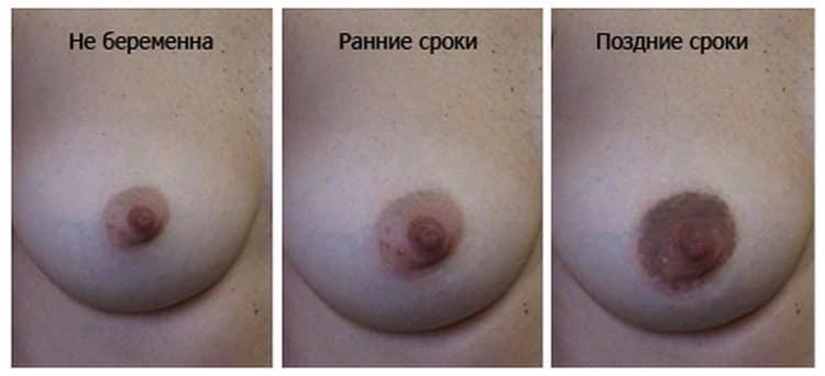 Почему чешется грудь при беременности