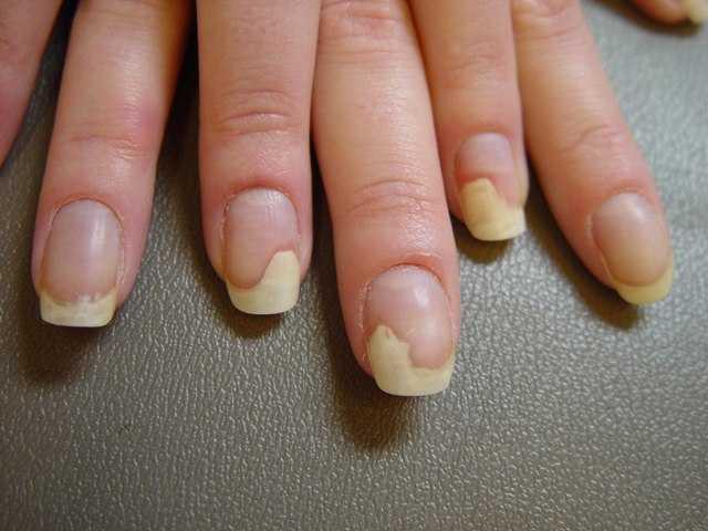 Почему ломаются ногти на руках у женщин и мужчин
