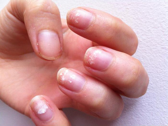 почему плохо держится гель лак на ногтях