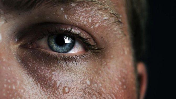 Почему сильно потеешь: причины, что делать, как избавиться