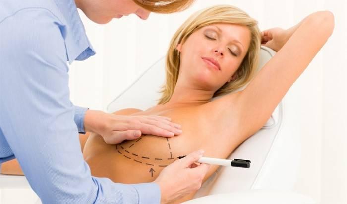 Подготовка к операции по уменьшению молочной железы