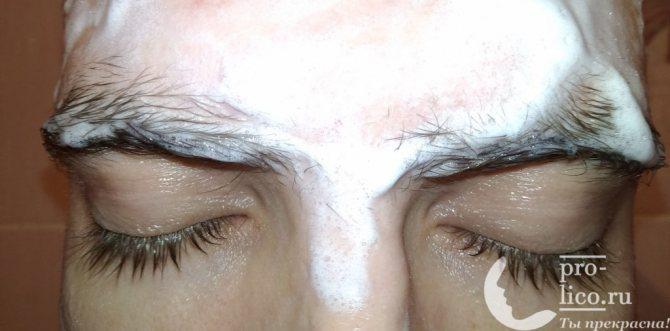 Подготовка кожи к эпиляции бровей пинцетом