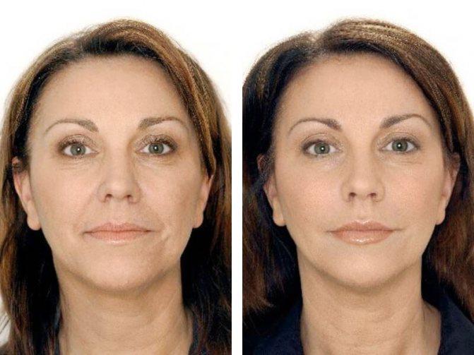 Поднятие бровей: до и после