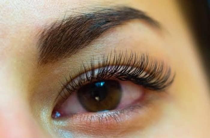 Покраснение глаз после наращивания ресничек из-за ожога роговицы