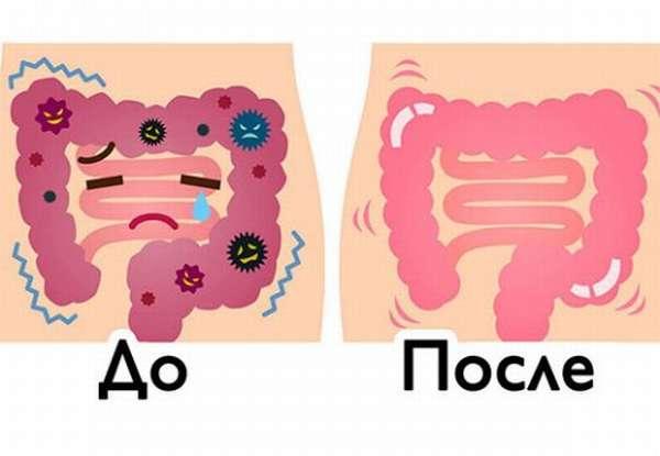 Полное очищение кишечника