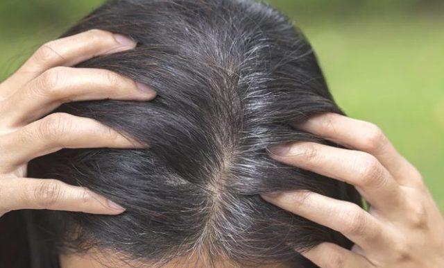 Как бороться с сединой волос у женщин: ранней и преждевременной, методы терапии