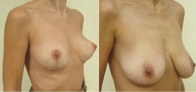 после родов грудь стала красивее 3