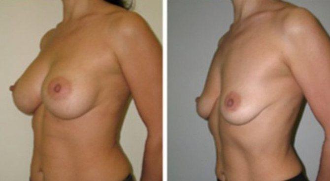 после родов сильно уменьшилась грудь