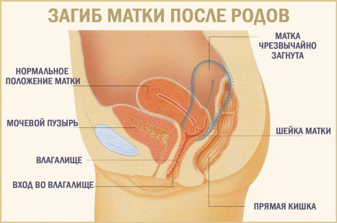 После родов загиб матки